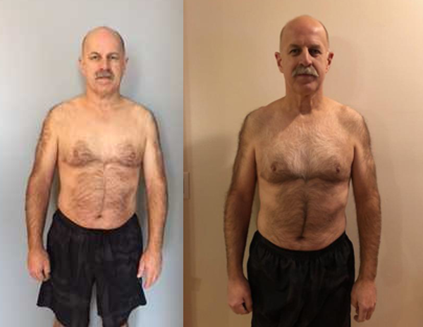 ed sulick before and after