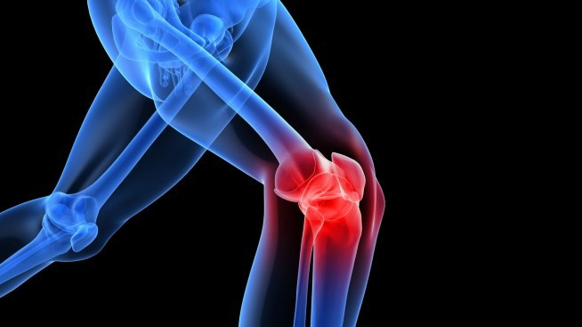 inflamed knee